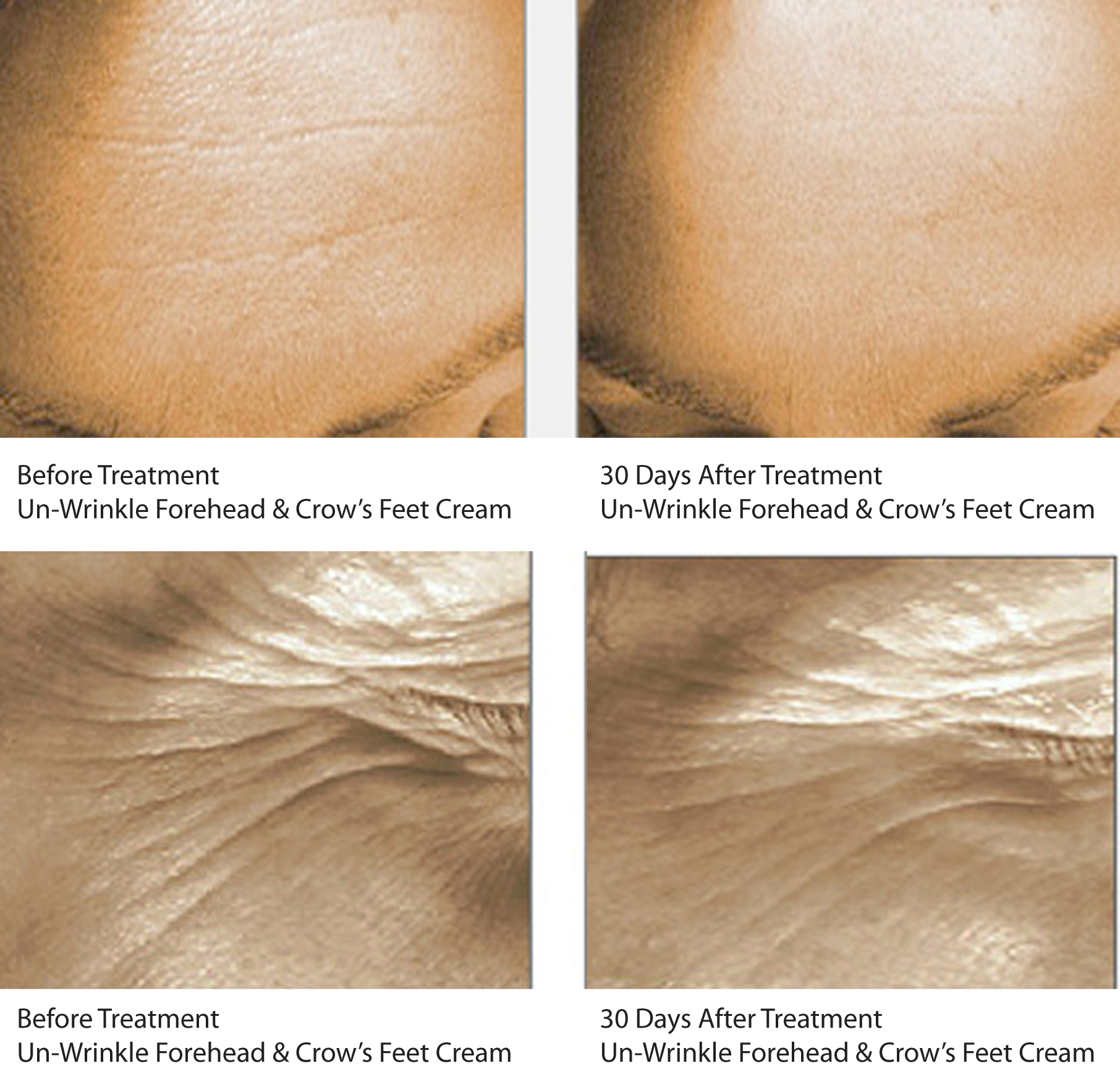 Skin 2 Skin's Un-Wrinkle Forehead & Crow;s Feet Cream Before & After