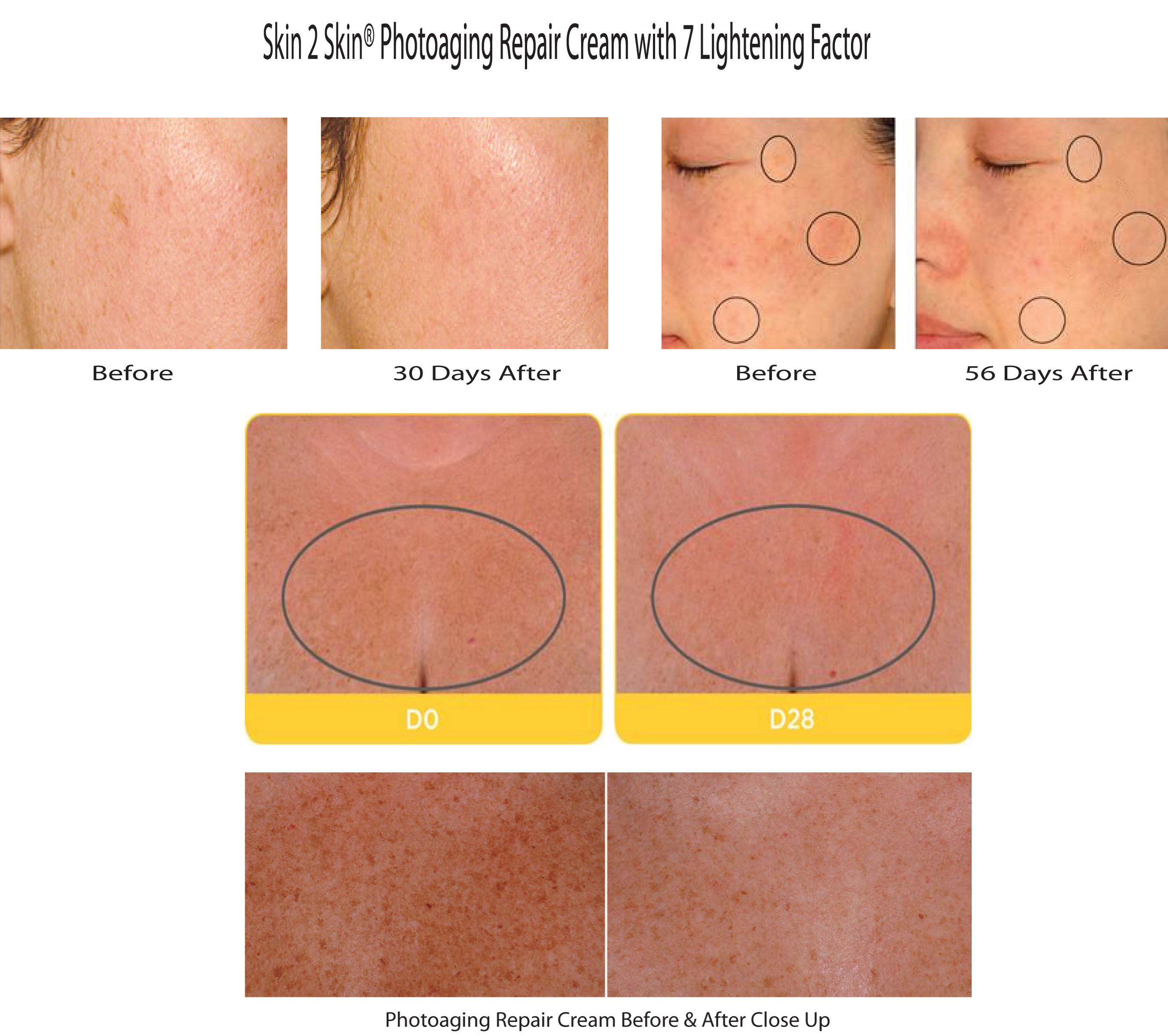 Skin 2 Skin's Photoaging Repair Cream 7-L Complex Before & After
