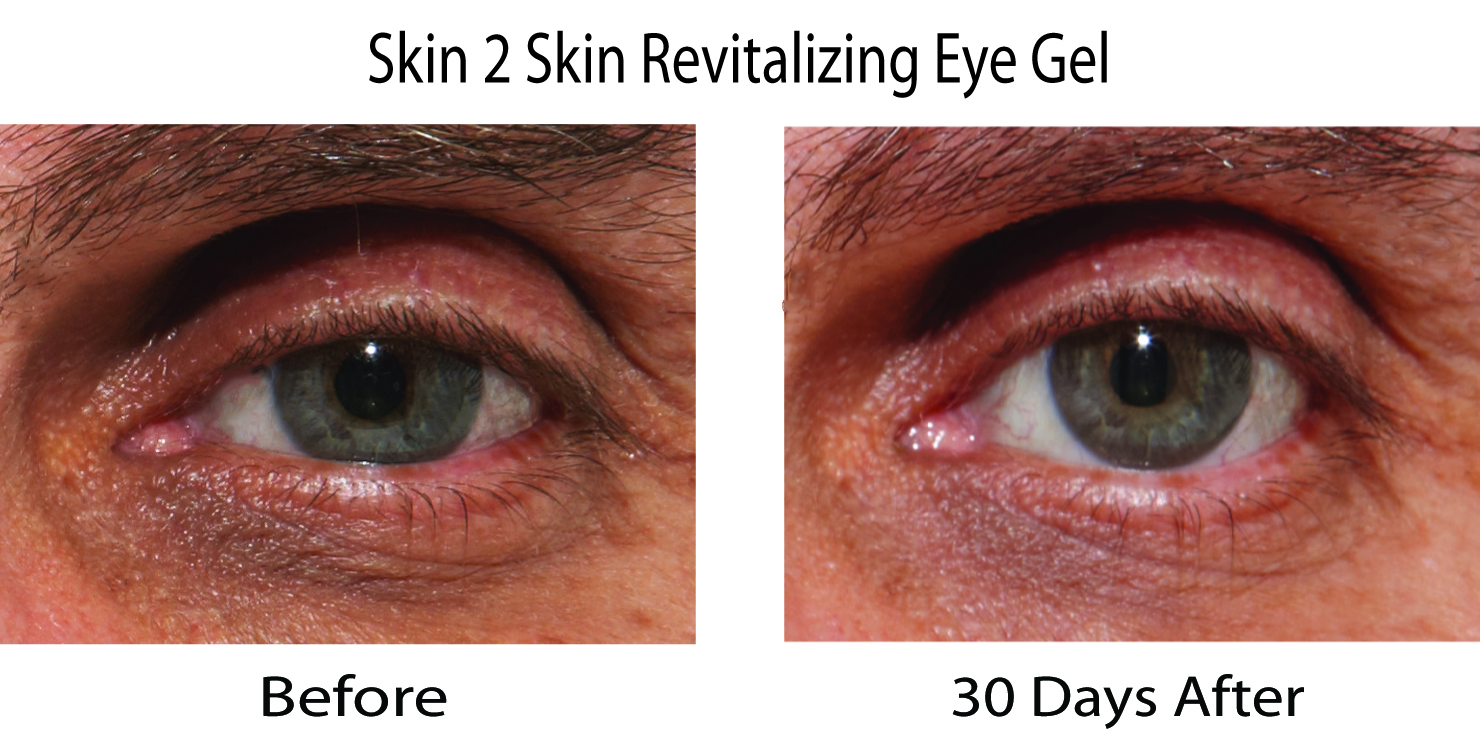 Skin 2 Skin Rejuvenation Eye Gel Before & After