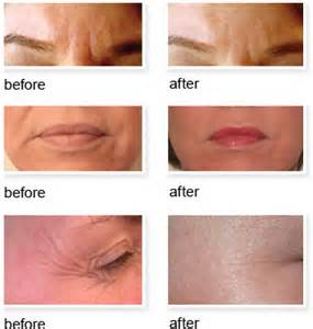 Skin 2 Skin Botox Alternative: Un-Wrinkle Forehead & Crow's-Feet Before and After