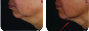 Slim-Excess B&A double chin